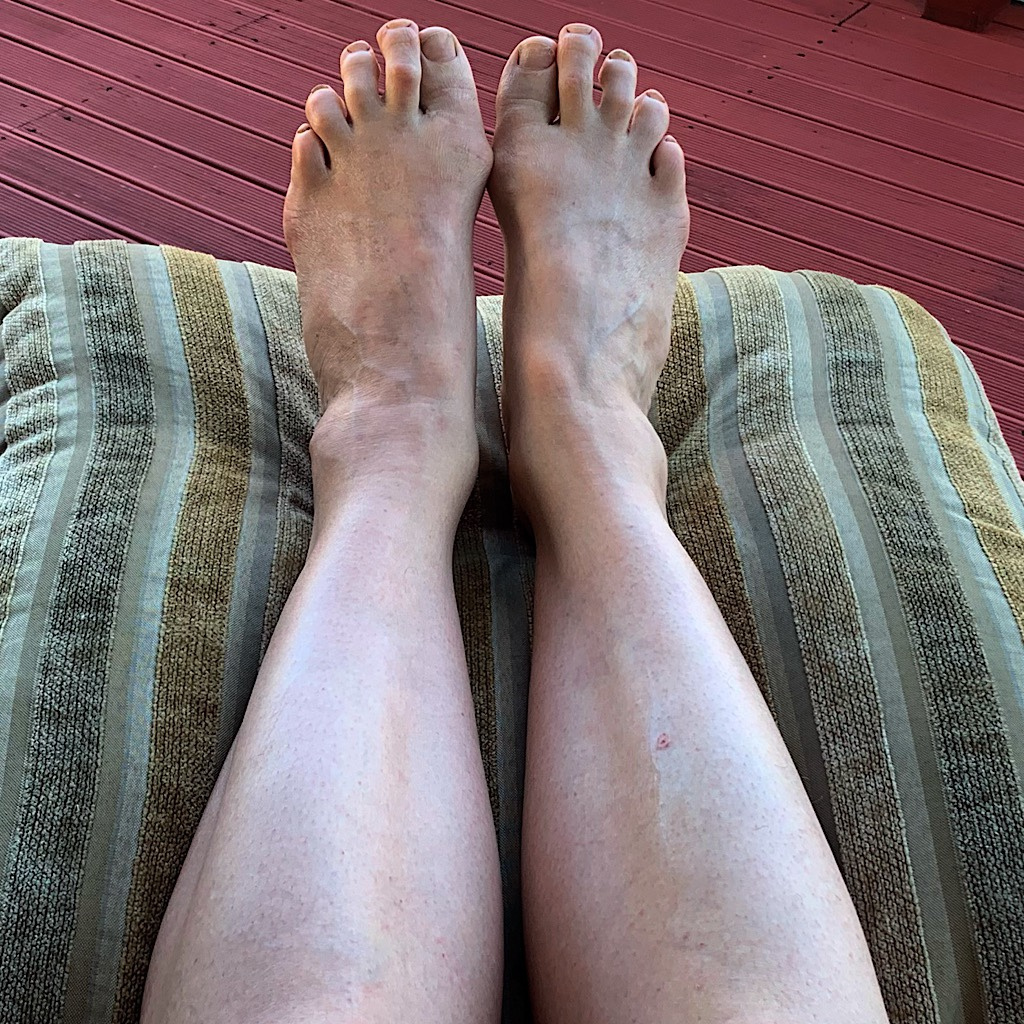 These arthritic and deformed feet are carrying my body really far. The legs got their first hair-removal in two months.